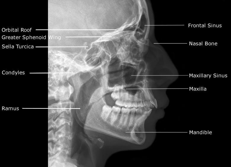 Anatomy of the Head & Face – Category 1- Intracranial ... Skull X Ray Views Merrills